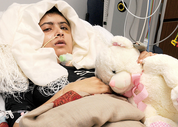 This image shows Malala Yousafzai laying on the bed in an hospital in UK after coming out of coma. But, her half of the face is still paralyzed.